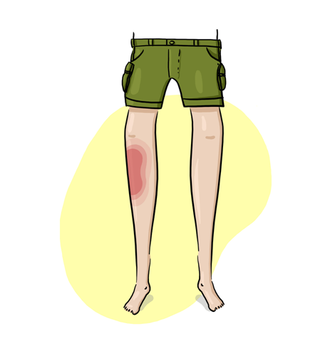 An illustration of legs with a bright red bruise on one of the legs.
